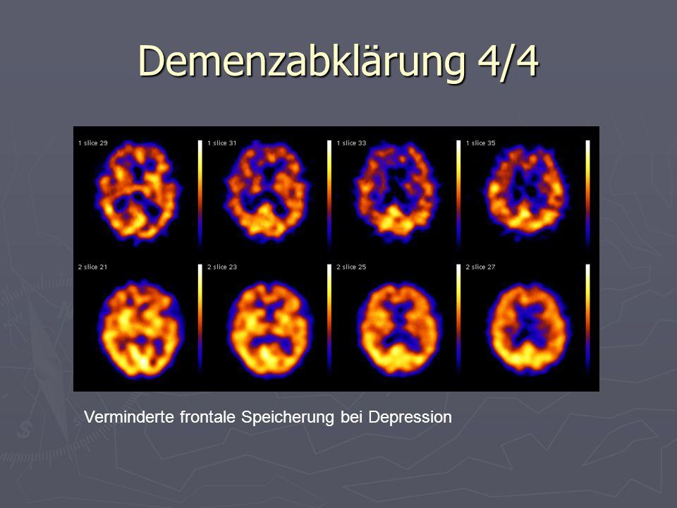 Demenzabklärung 4/4 Verminderte frontale Speicherung bei Depression