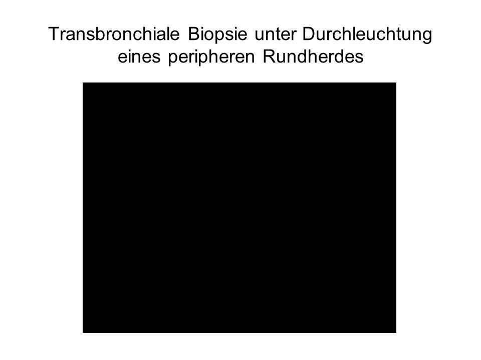 Transbronchiale Biopsie unter Durchleuchtung eines peripheren Rundherdes