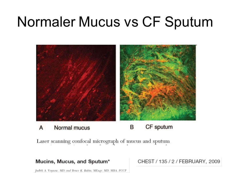 Normaler Mucus vs CF Sputum