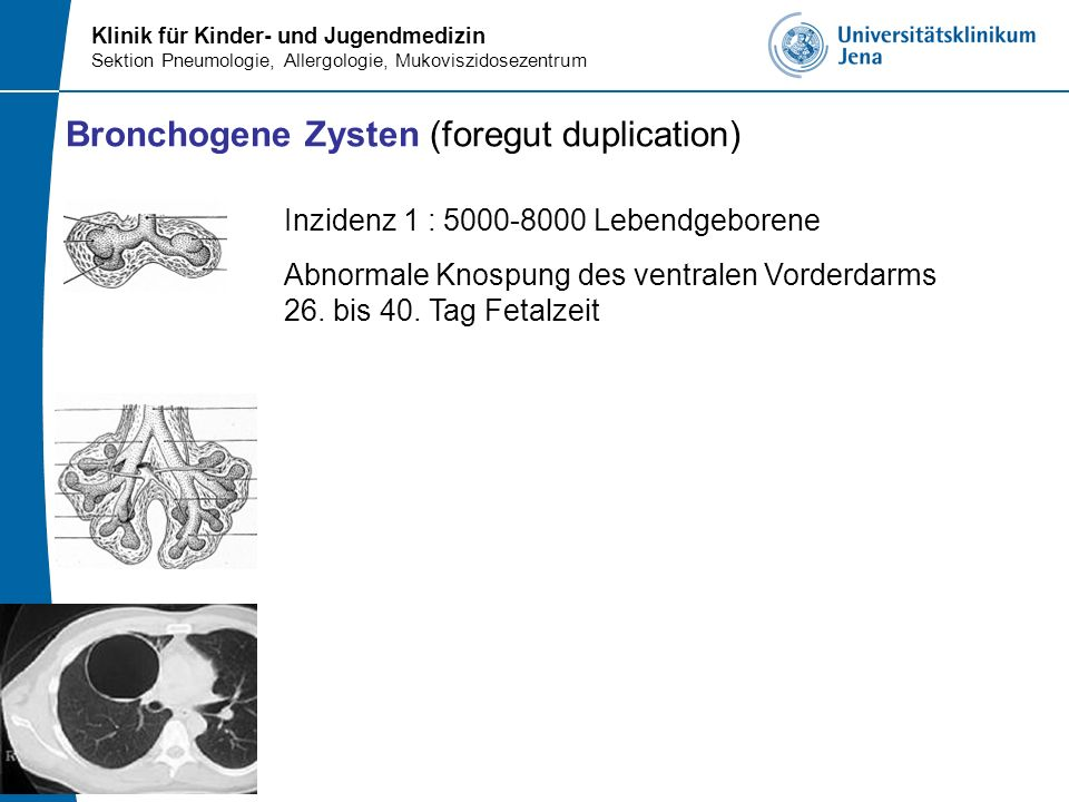 Bronchogene Zysten (foregut duplication)