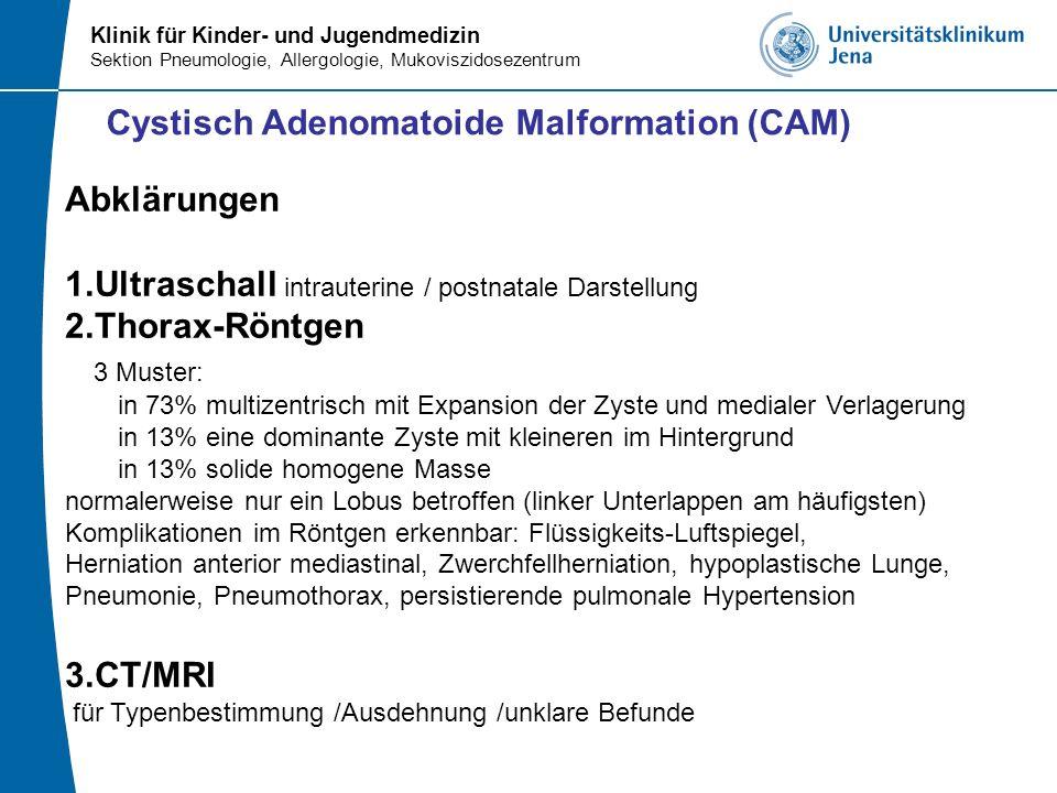 Cystisch Adenomatoide Malformation (CAM)