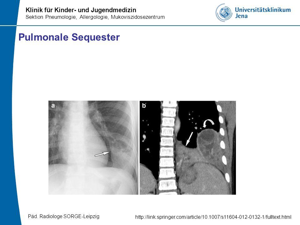 Pulmonale Sequester Päd. Radiologe SORGE-Leipzig