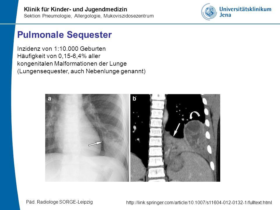 Pulmonale Sequester Inzidenz von 1:10.000 Geburten Häufigkeit von 0,15-6,4% aller. kongenitalen Malformationen der Lunge.