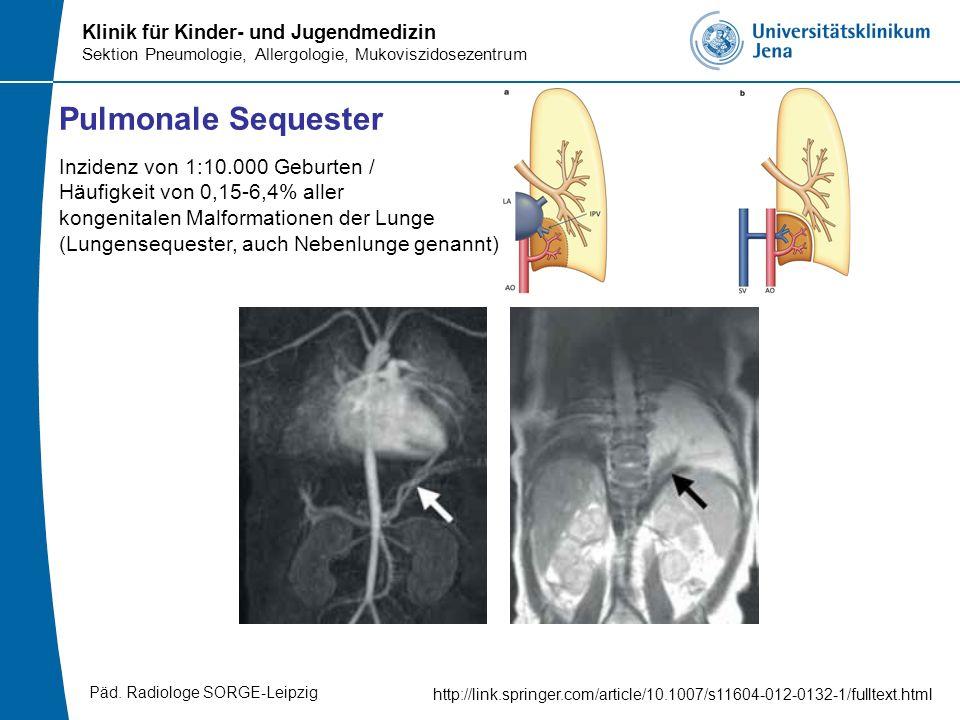 Pulmonale Sequester Inzidenz von 1:10.000 Geburten / Häufigkeit von 0,15-6,4% aller. kongenitalen Malformationen der Lunge.