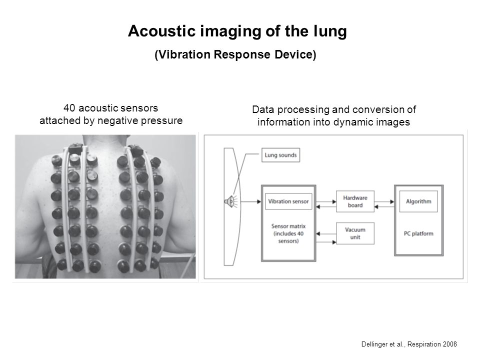 Acoustic imaging of the lung