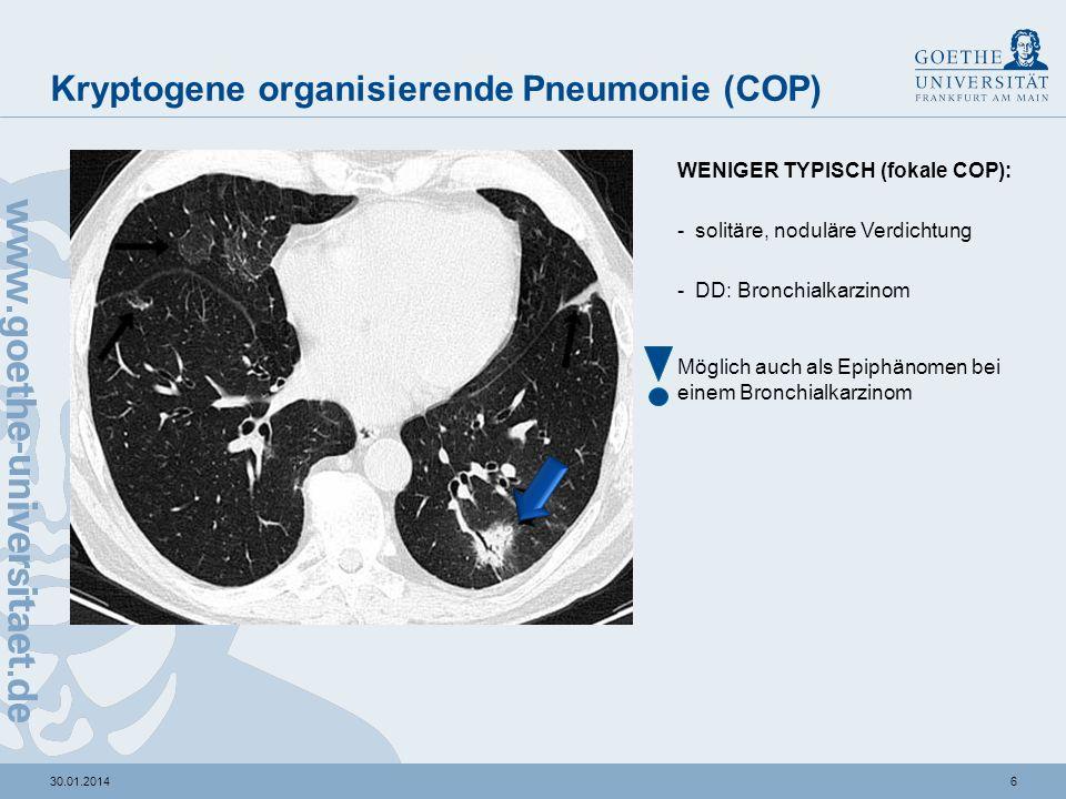 Kryptogene organisierende Pneumonie (COP) - ppt video ... | 960 x 720 jpeg 94kB