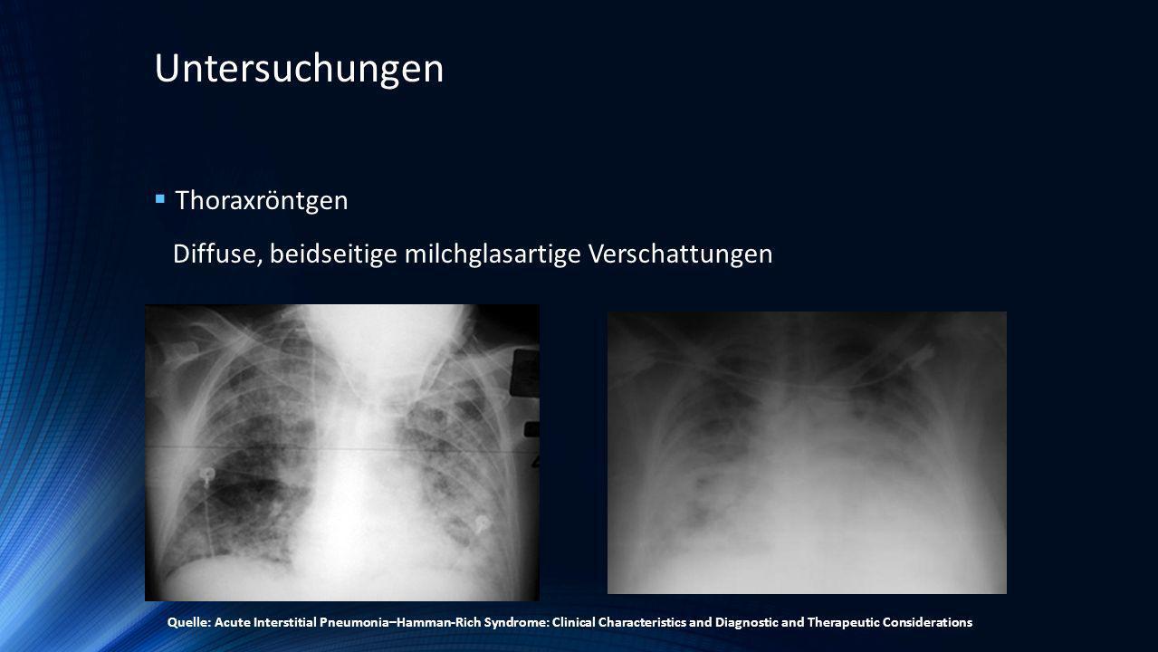 Untersuchungen Thoraxröntgen