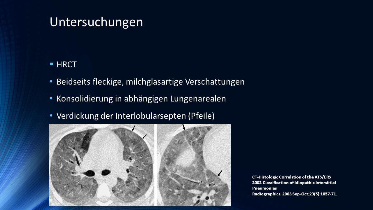 Untersuchungen HRCT Beidseits fleckige, milchglasartige Verschattungen