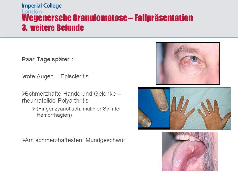 Wegenersche Granulomatose – Fallpräsentation 3. weitere Befunde