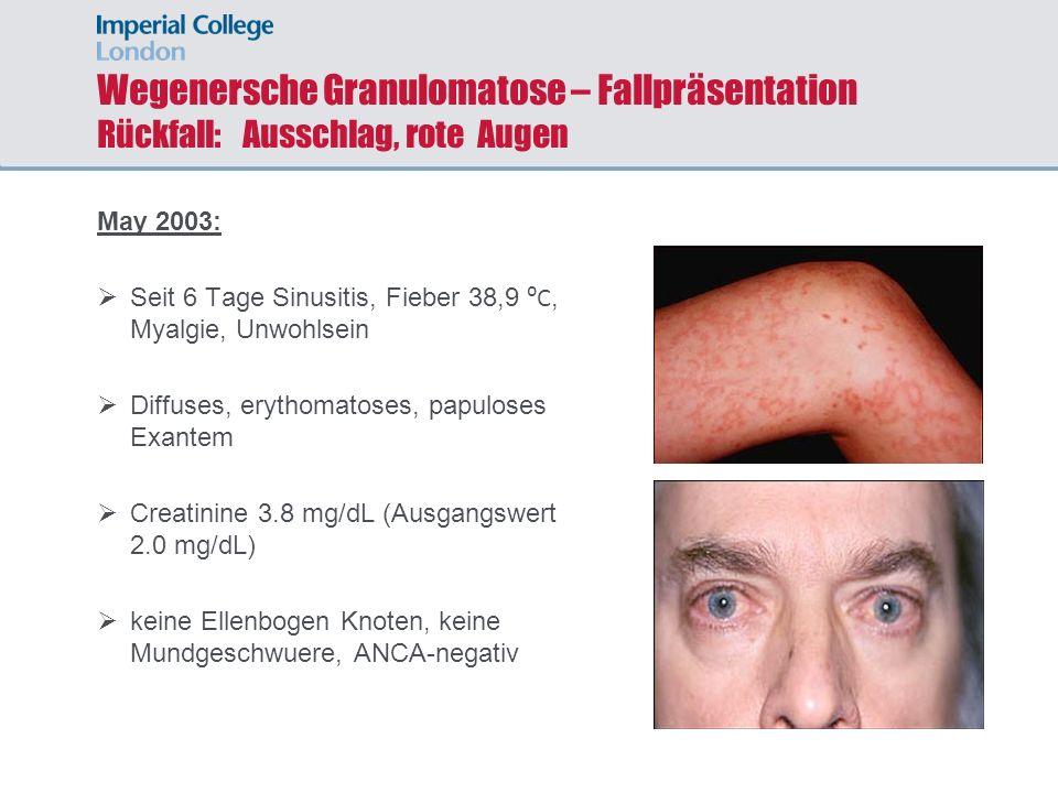 Wegenersche Granulomatose – Fallpräsentation Rückfall: Ausschlag, rote Augen