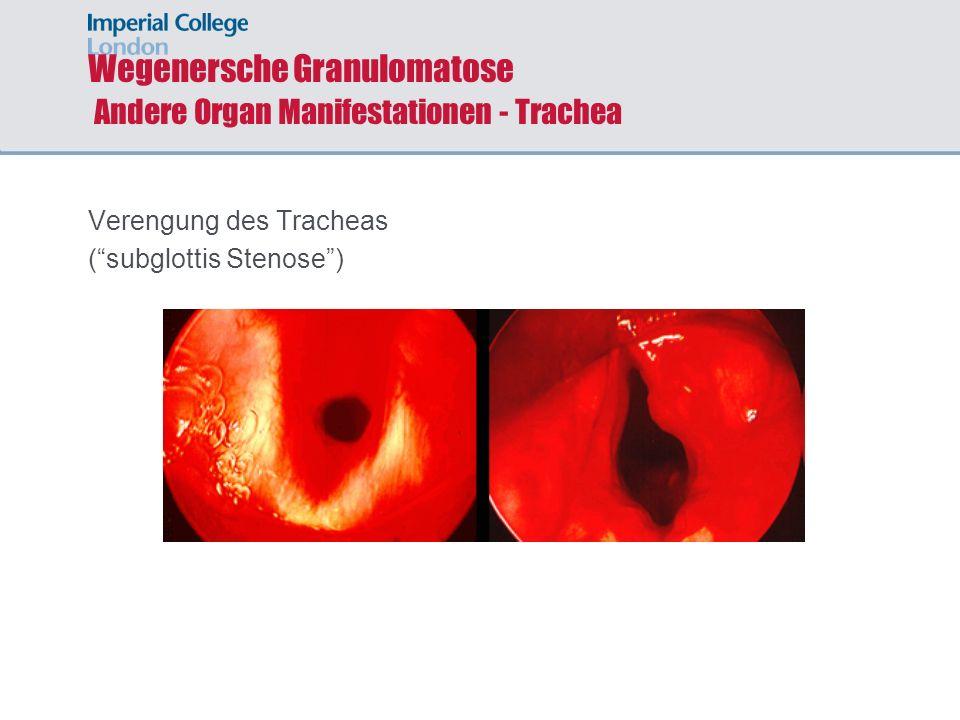 Wegenersche Granulomatose Andere Organ Manifestationen - Trachea
