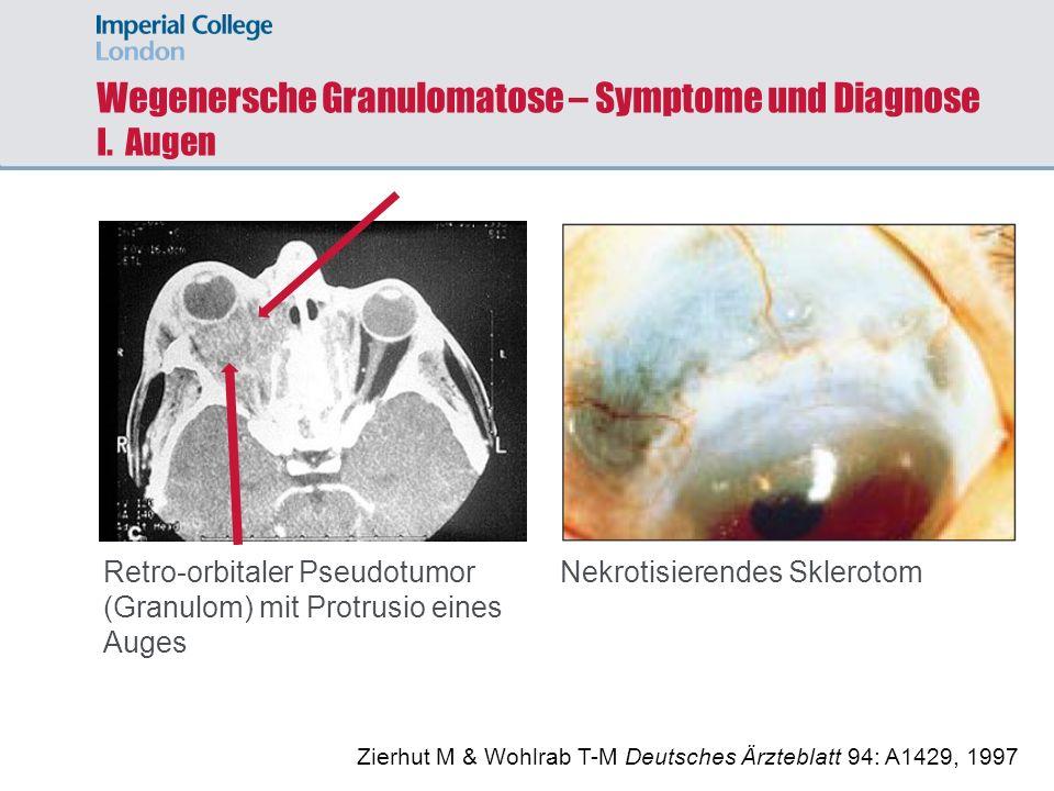 Wegenersche Granulomatose – Symptome und Diagnose I. Augen