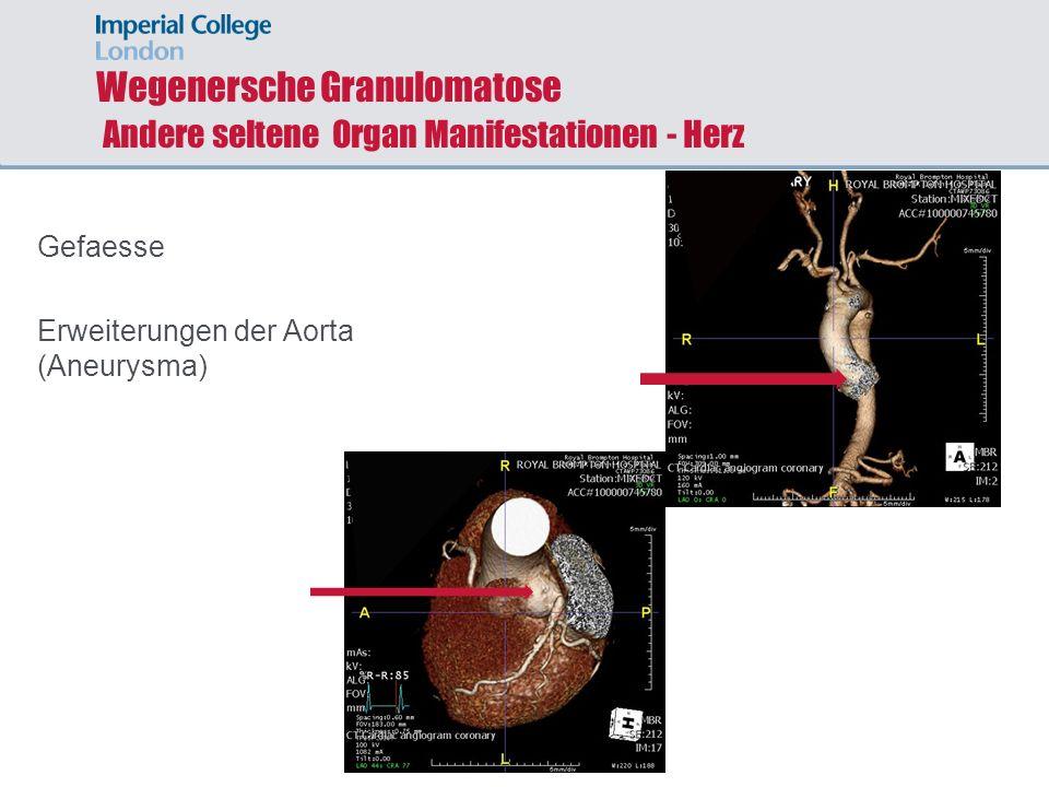 Wegenersche Granulomatose Andere seltene Organ Manifestationen - Herz
