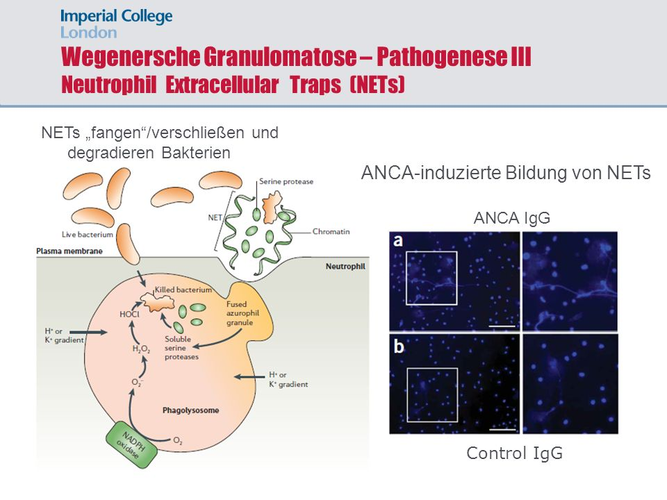 Wegenersche Granulomatose – Pathogenese III Neutrophil Extracellular Traps (NETs)