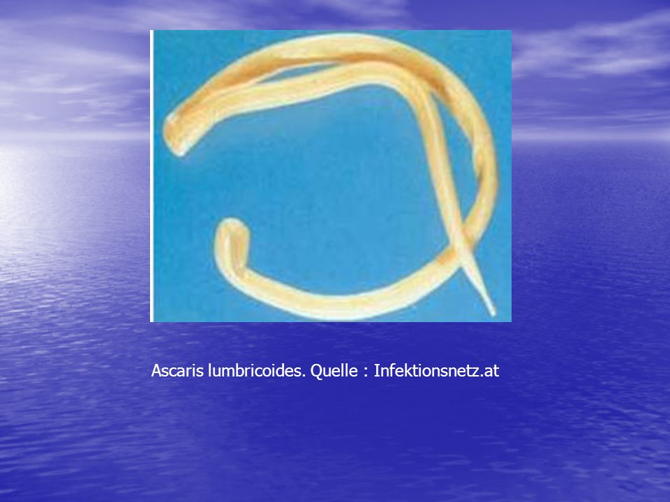 Ascaris lumbricoides. Quelle : Infektionsnetz.at