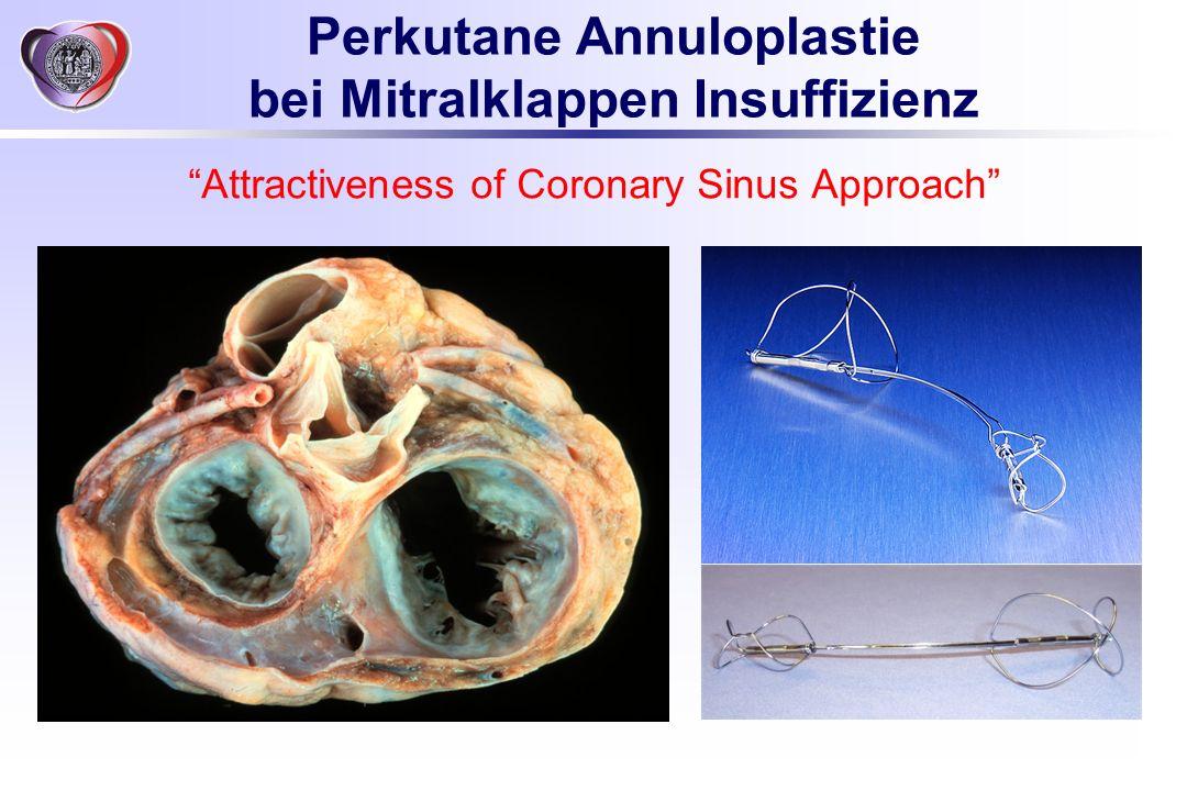 Perkutane Annuloplastie bei Mitralklappen Insuffizienz