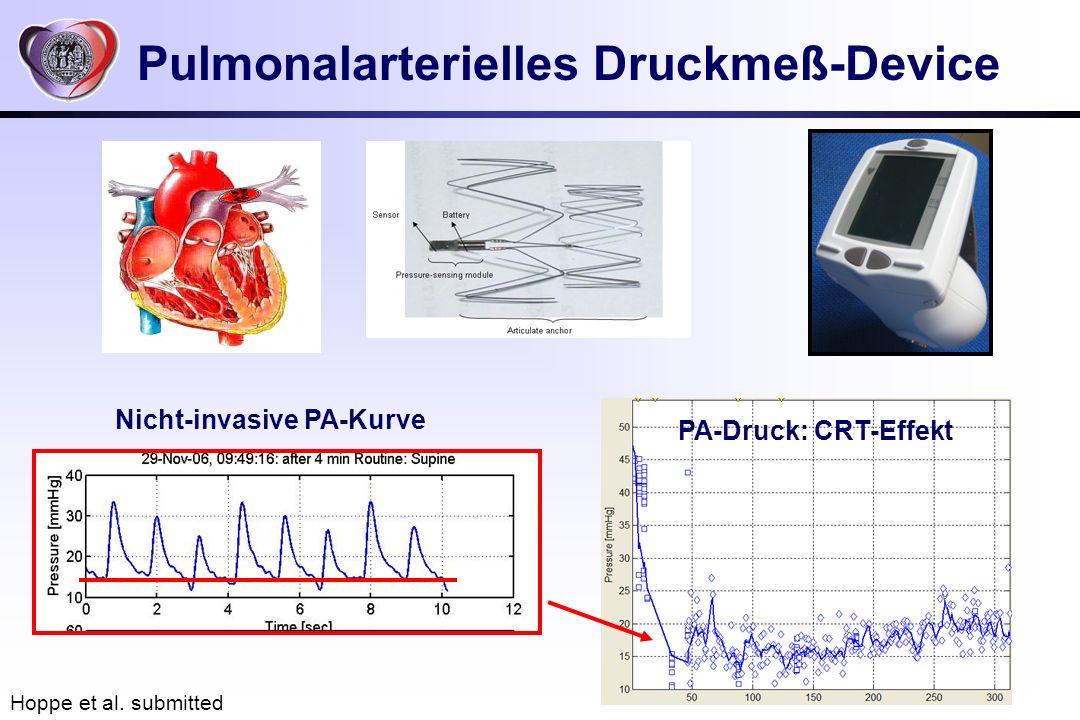 Pulmonalarterielles Druckmeß-Device