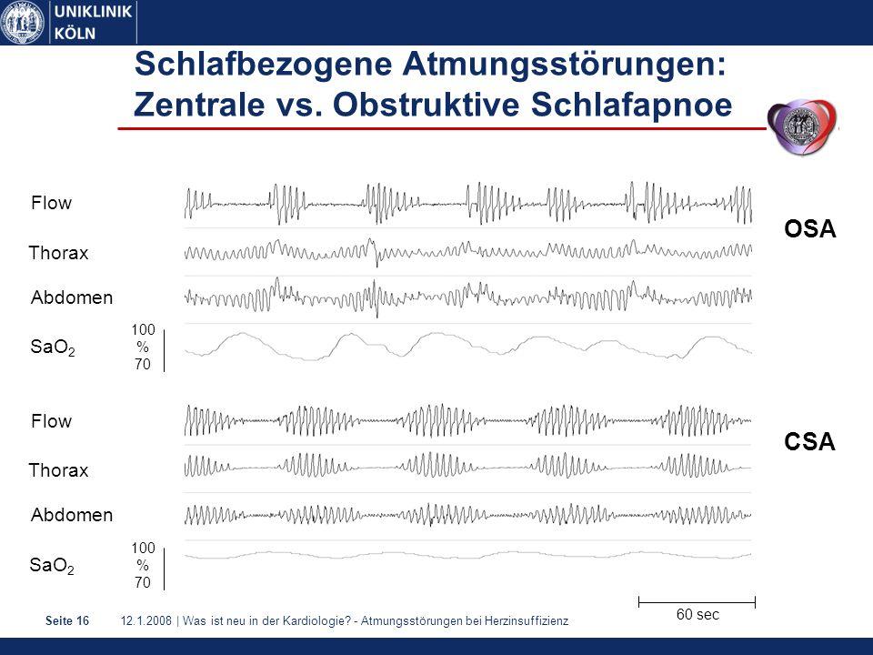 Schlafbezogene Atmungsstörungen: Zentrale vs. Obstruktive Schlafapnoe