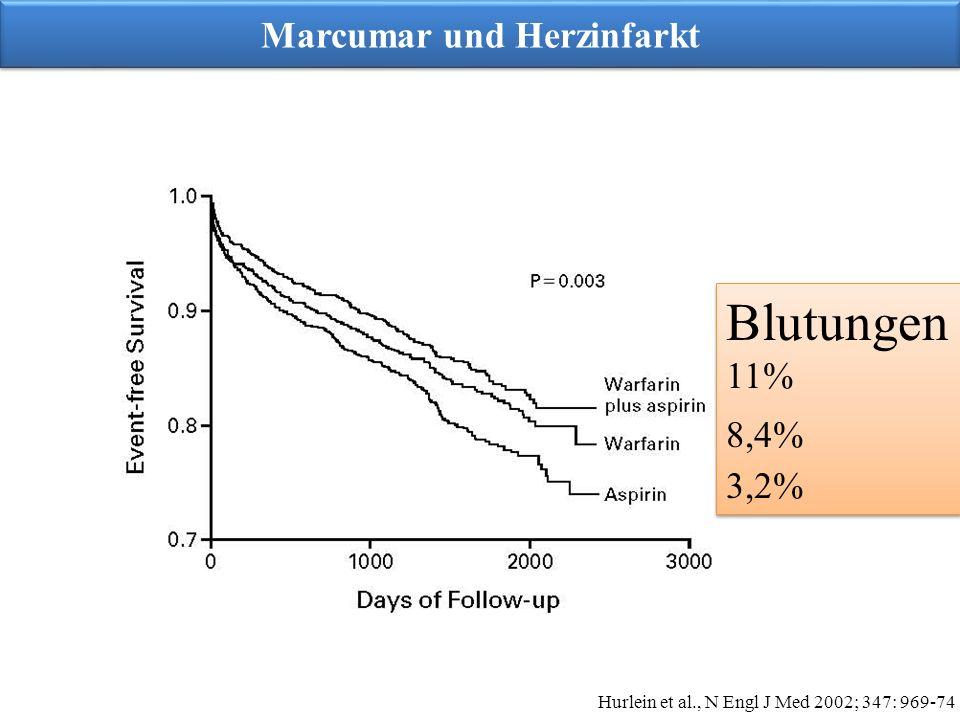 Marcumar und Herzinfarkt