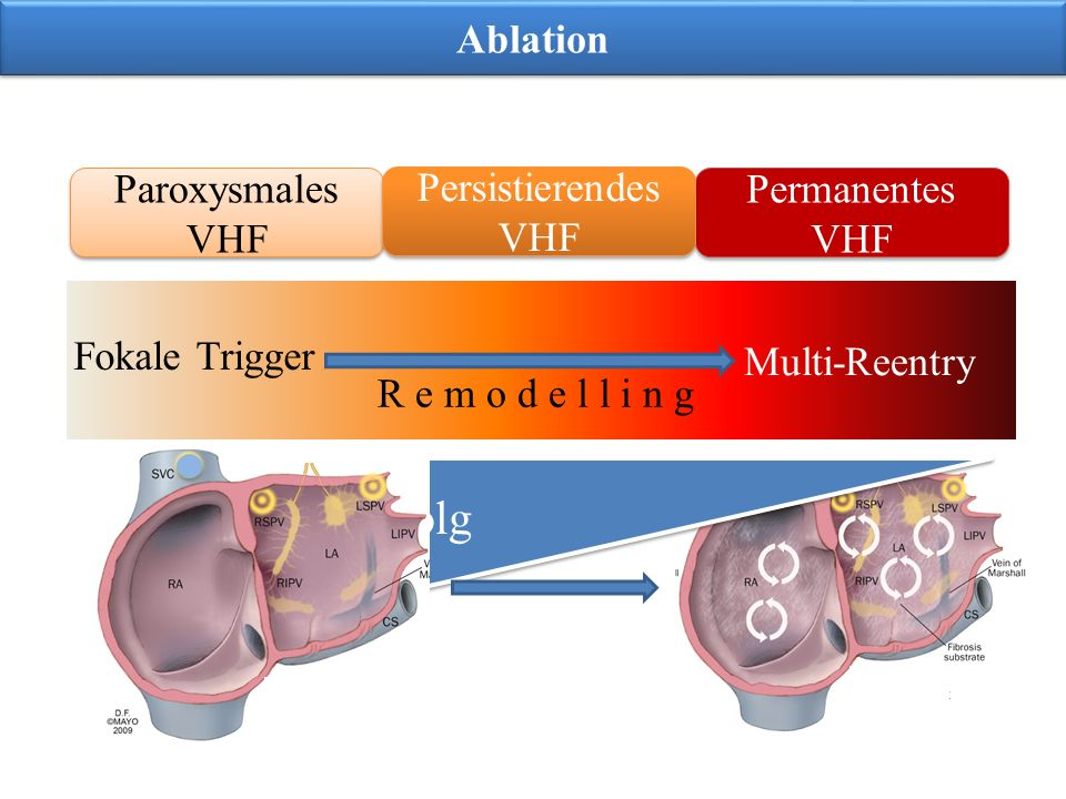Ablationserfolg Ablation Paroxysmales VHF Persistierendes VHF