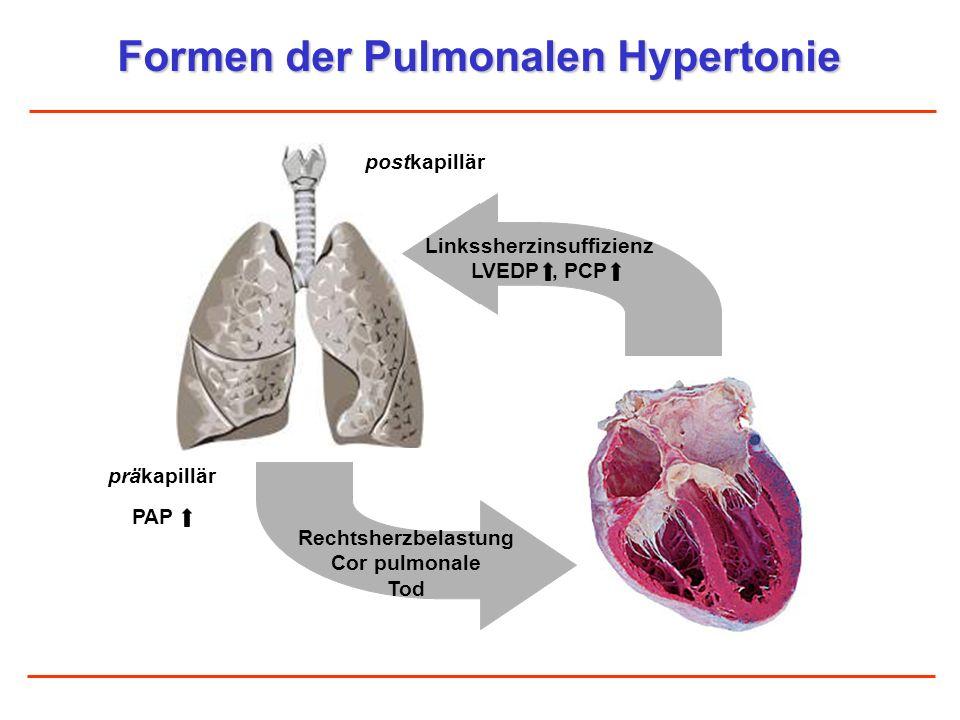 Formen der Pulmonalen Hypertonie Linkssherzinsuffizienz