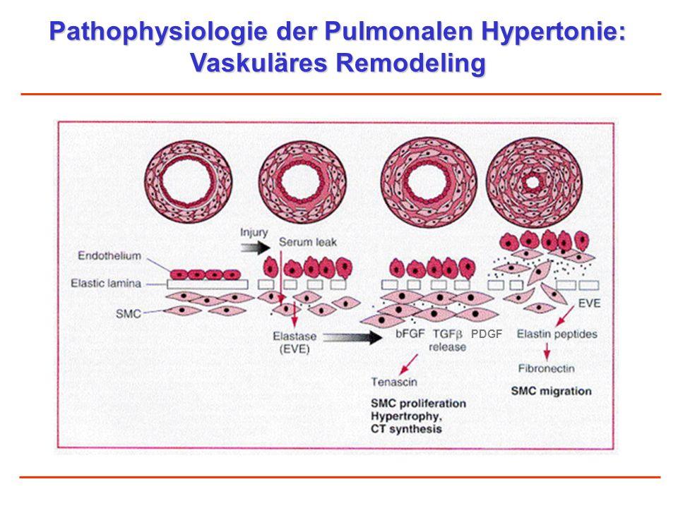 Pathophysiologie der Pulmonalen Hypertonie: Vaskuläres Remodeling