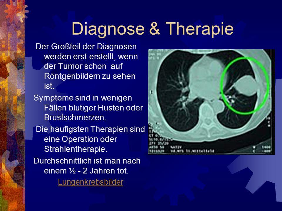 Diagnose & Therapie Der Großteil der Diagnosen werden erst erstellt, wenn der Tumor schon auf Röntgenbildern zu sehen ist.