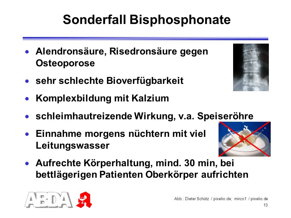 Sonderfall Bisphosphonate