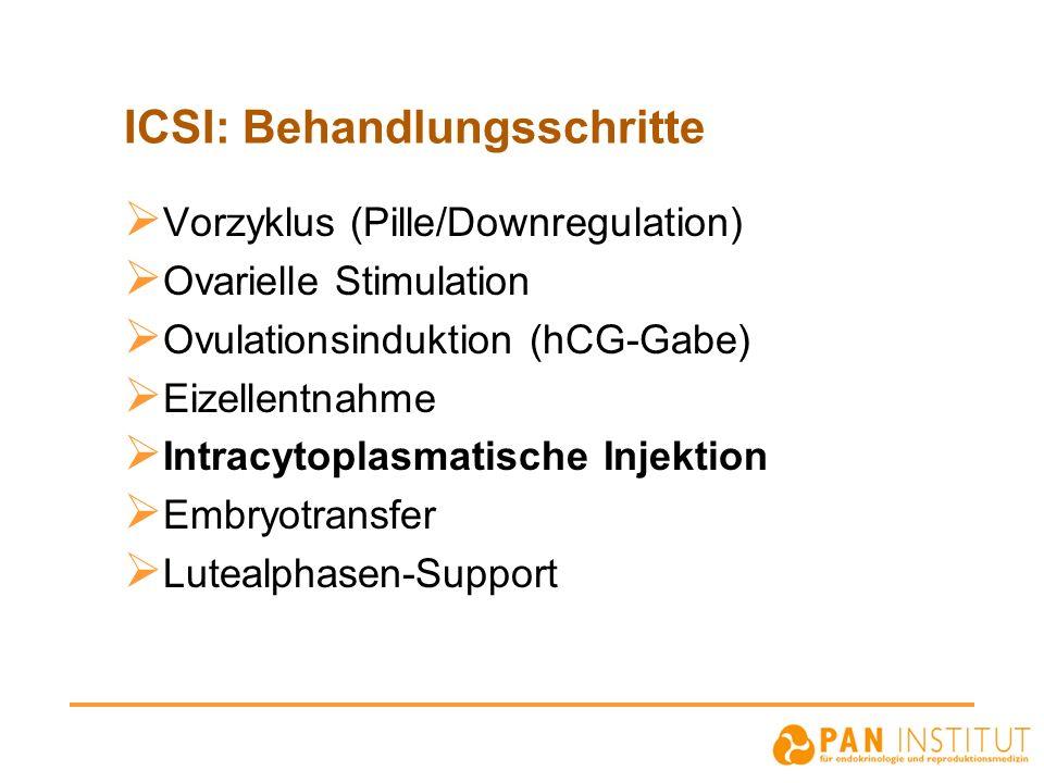 ICSI: Behandlungsschritte