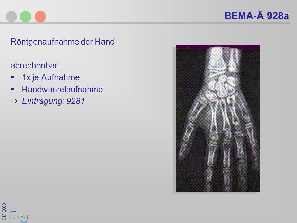 BEMA-Ä 928a Röntgenaufnahme der Hand abrechenbar: 1x je Aufnahme
