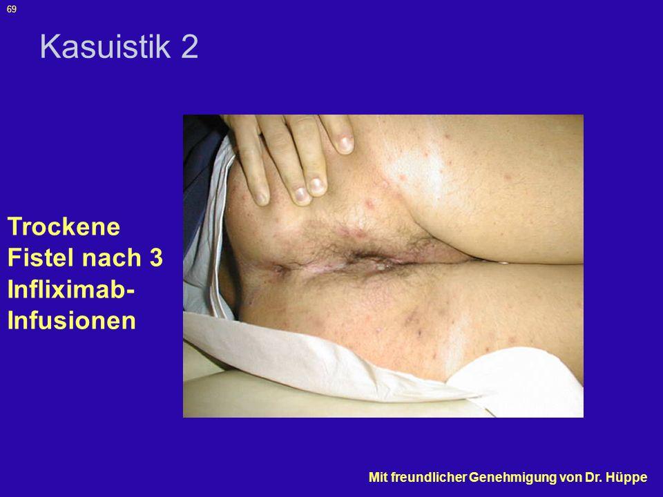 Kasuistik 2 Trockene Fistel nach 3 Infliximab-Infusionen