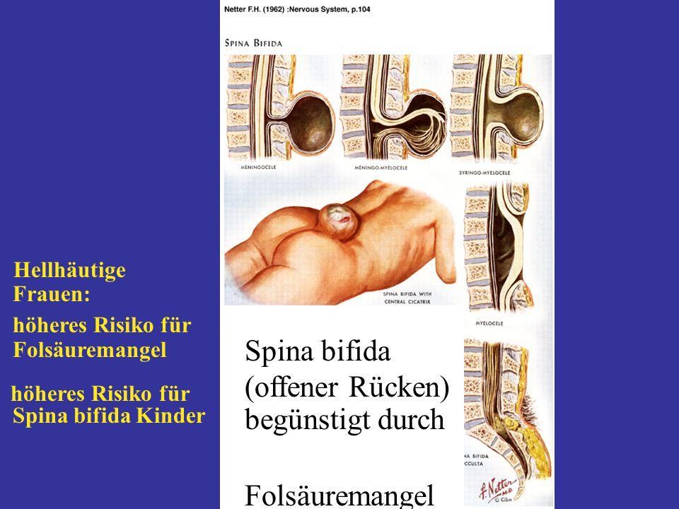 670 Spina bifida (offener Rücken) begünstigt durch Folsäuremangel