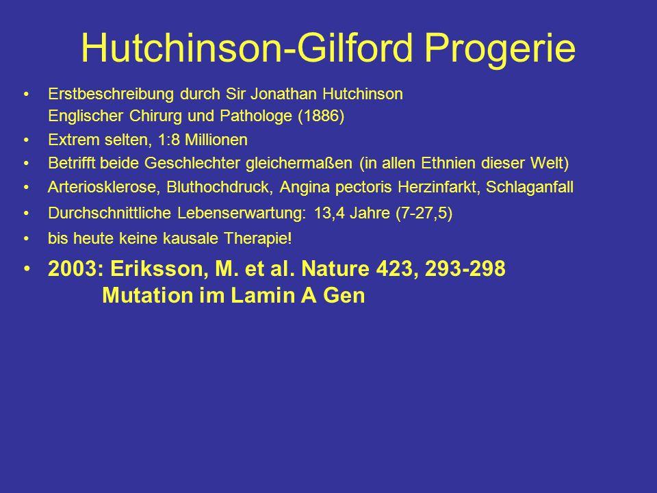 Hutchinson-Gilford Progerie