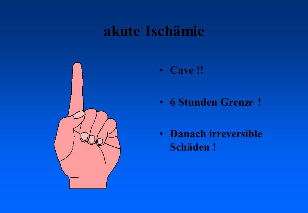 akute Ischämie Cave !! 6 Stunden Grenze !