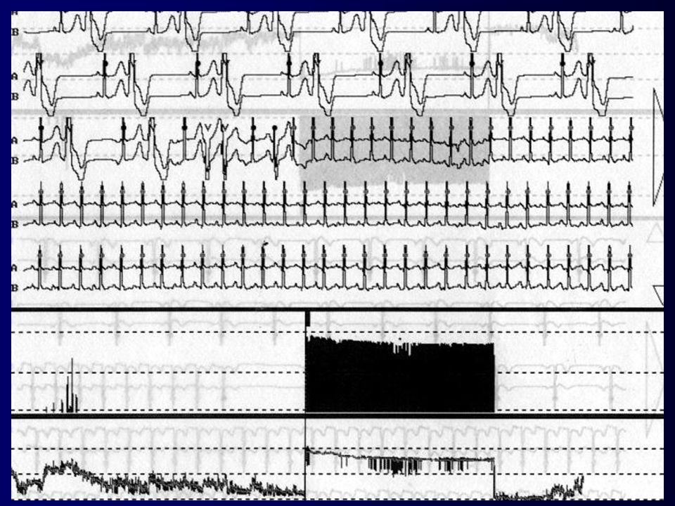 Beginn einer paroxysmalen Tachykardie mit schmalem QRS-Komplex bei vermutlich Vorhofflattern mit 2:1 Überleitung, DD AV-nodaler Reentrytachykardie