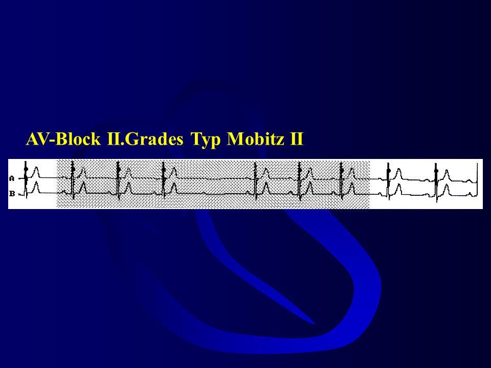 AV-Block II.Grades Typ Mobitz II