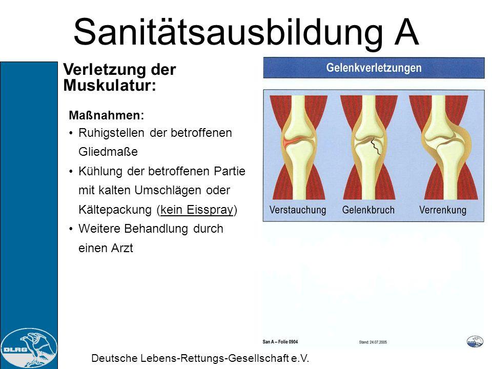 Sanitätsausbildung A Verletzung der Muskulatur: Maßnahmen: