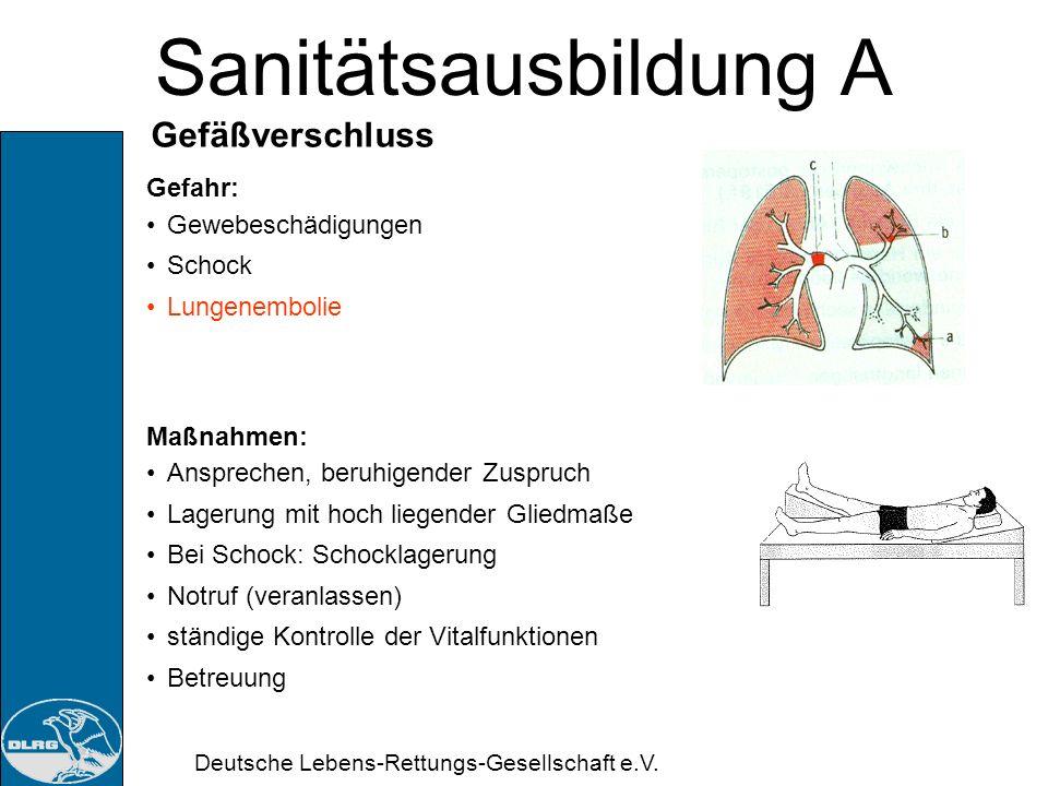 Sanitätsausbildung A Gefäßverschluss Gefahr: Gewebeschädigungen Schock