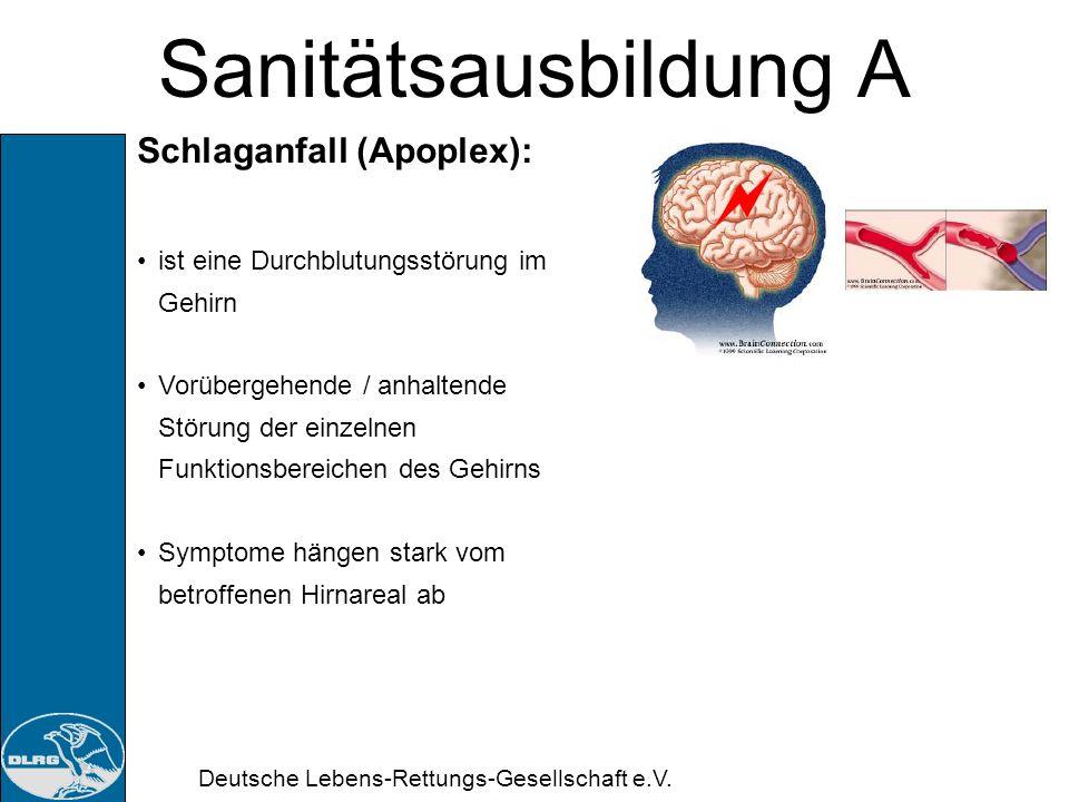 Sanitätsausbildung A Schlaganfall (Apoplex):