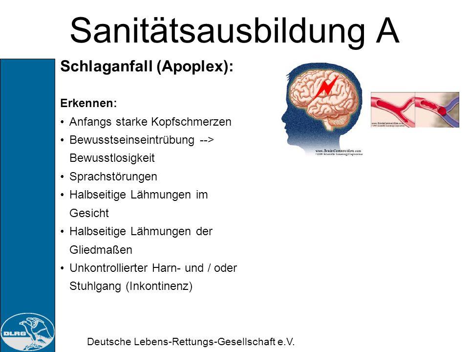 Sanitätsausbildung A Schlaganfall (Apoplex): Erkennen:
