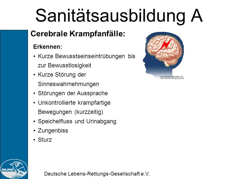 Sanitätsausbildung A Cerebrale Krampfanfälle: Erkennen: