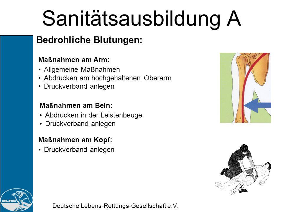 Sanitätsausbildung A Bedrohliche Blutungen: Maßnahmen am Arm: