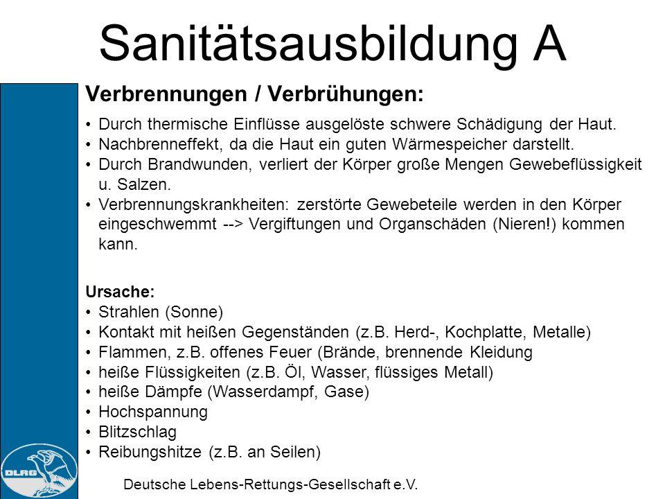 Sanitätsausbildung A Verbrennungen / Verbrühungen: