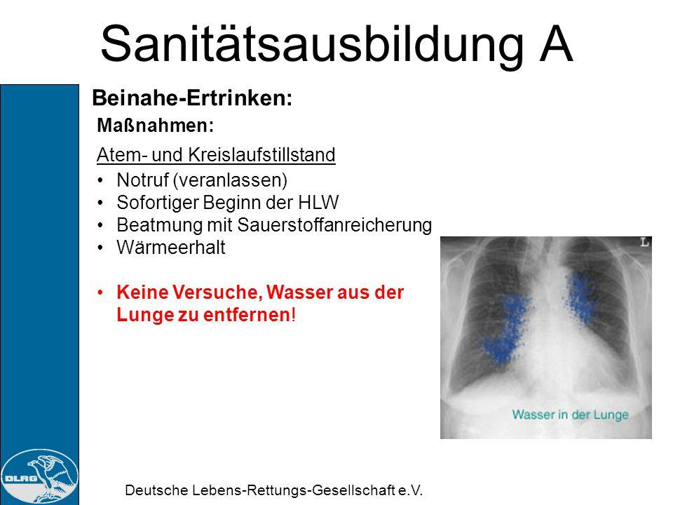Sanitätsausbildung A Beinahe-Ertrinken: Maßnahmen: