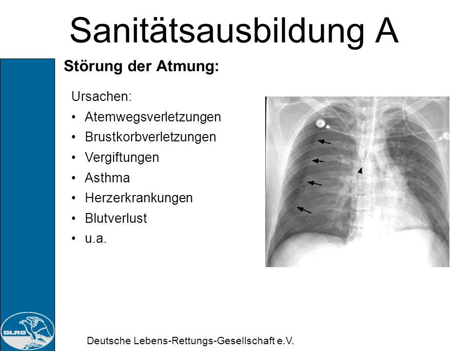 Sanitätsausbildung A Störung der Atmung: Ursachen: