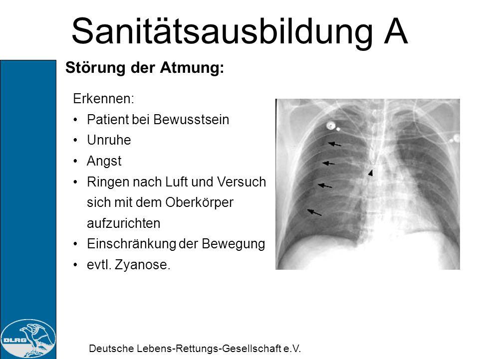 Sanitätsausbildung A Störung der Atmung: Erkennen: