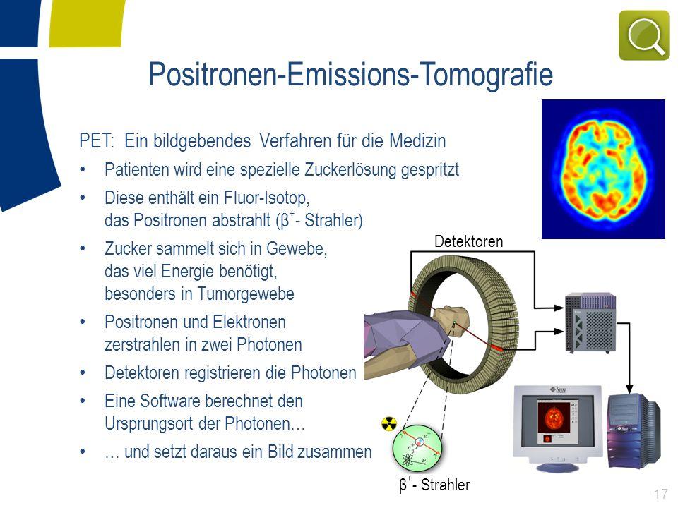 Positronen-Emissions-Tomografie