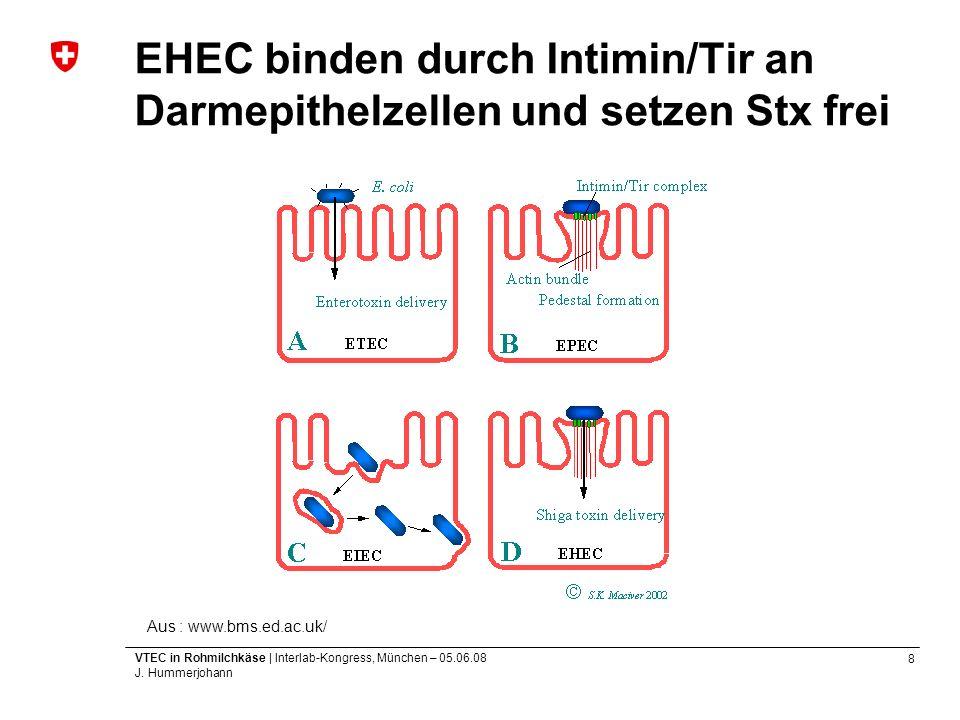 EHEC binden durch Intimin/Tir an Darmepithelzellen und setzen Stx frei