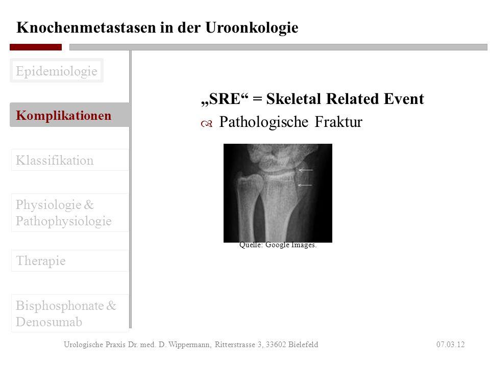 Knochenmetastasen in der Uroonkologie