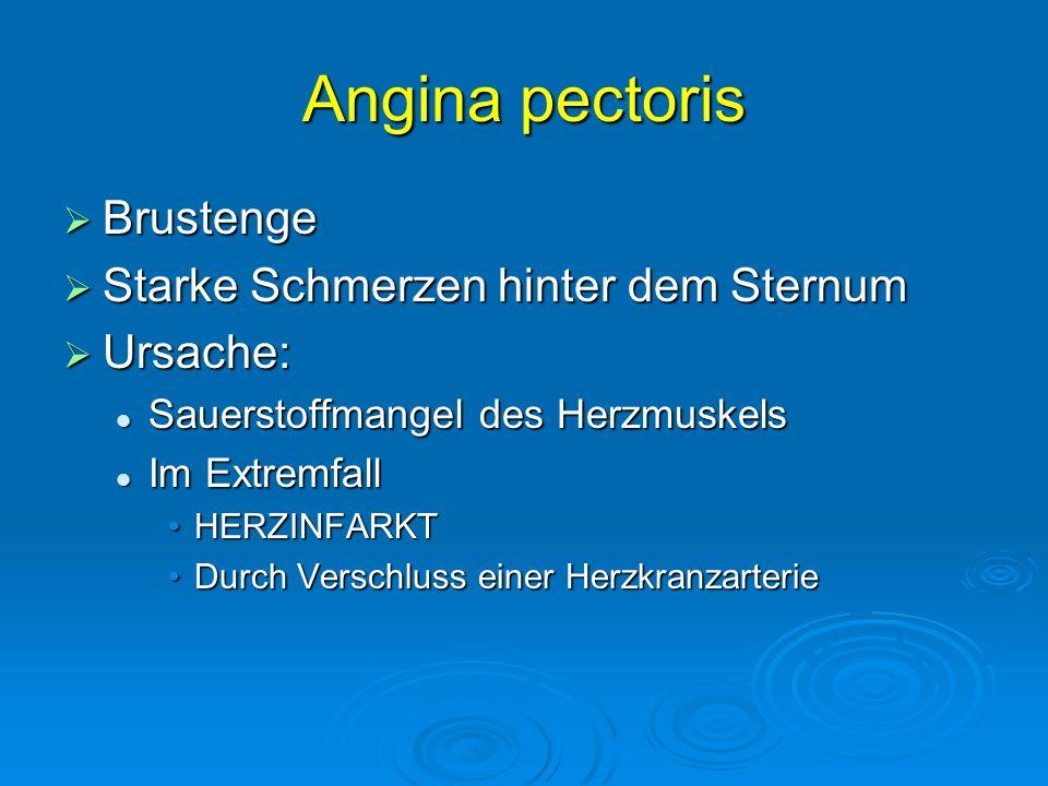 Angina pectoris Brustenge Starke Schmerzen hinter dem Sternum Ursache: